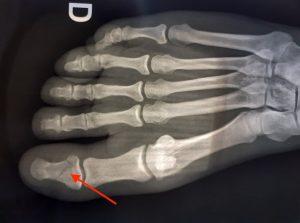 Fracture P2